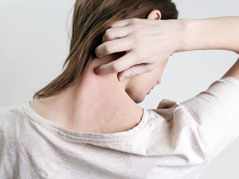 Woman scratching at psoriasis not realizing it can lead to hearing loss.